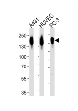Western blot of lysates from A431, HUVEC, PC-3 cell line (from left to right), using EGFR Antibody (pS1026). Antibody was diluted at 1:1000 at each lane. A goat anti-rabbit IgG H&L (HRP) at 1:5000 dilution was used as the secondary antibody. Lysates at 35ug per lane.