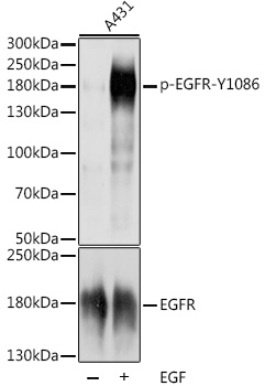 EGFR Antibody - Western blot analysis of extracts of A-431 cells, using Phospho-EGFR-Y1086 antibody at 1:1000 dilution or EGFR antibody. A-431 cells were treated by EGF (100 ng/ml) at 37℃ for 30 minutes after serum-starvation overnight. The secondary antibody used was an HRP Goat Anti-Rabbit IgG (H+L) at 1:10000 dilution. Lysates were loaded 25ug per lane and 3% nonfat dry milk in TBST was used for blocking. Blocking buffer: 3% BSA.An ECL Kit was used for detection and the exposure time was 1s.