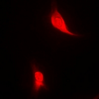 EGLN1 / PHD2 Antibody - Immunofluorescent analysis of EGLN1 staining in MCF7 cells. Formalin-fixed cells were permeabilized with 0.1% Triton X-100 in TBS for 5-10 minutes and blocked with 3% BSA-PBS for 30 minutes at room temperature. Cells were probed with the primary antibody in 3% BSA-PBS and incubated overnight at 4 deg C in a humidified chamber. Cells were washed with PBST and incubated with a DyLight 594-conjugated secondary antibody (red) in PBS at room temperature in the dark.