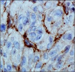 EGLN3 / PHD3 Antibody - HIF Prolyl Hydroxylase 3 Antibody (EG188e/d5) - IHC of HIF Prolyl Hydroxylase 3 in human renal cancer using DAB with hematoxylin counterstain.  This image was taken for the unconjugated form of this product. Other forms have not been tested.