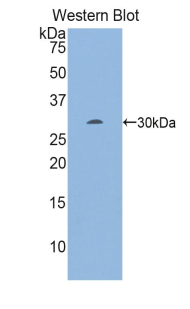 EGR2 Antibody - Western blot of recombinant EGR2.  This image was taken for the unconjugated form of this product. Other forms have not been tested.