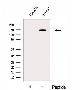 EHBP1 Antibody - Western blot analysis of extracts of HepG2 cells using EHBP1 antibody. The lane on the left was treated with blocking peptide.