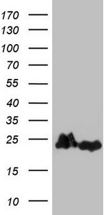 HEK293T cells were transfected with the pCMV6-ENTRY control (Left lane) or pCMV6-ENTRY EIF1AY (Right lane) cDNA for 48 hrs and lysed. Equivalent amounts of cell lysates (5 ug per lane) were separated by SDS-PAGE and immunoblotted with anti-EIF1AY.