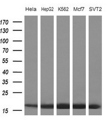 Western blot of extracts (10ug) from 5 different cell lines by using anti-EIF1AY monoclonal antibody at 1:200 dilution.