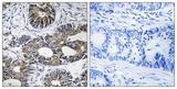 IHC of paraffin-embedded human colon carcinoma tissue, using EIF1AY Antibody. The picture on the right is treated with the synthesized peptide.
