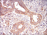 IHC of paraffin-embedded cervical cancer tissues using EIF2A mouse monoclonal antibody with DAB staining.