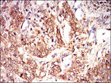 IHC of paraffin-embedded bladder cancer tissues using EIF2A mouse monoclonal antibody with DAB staining.