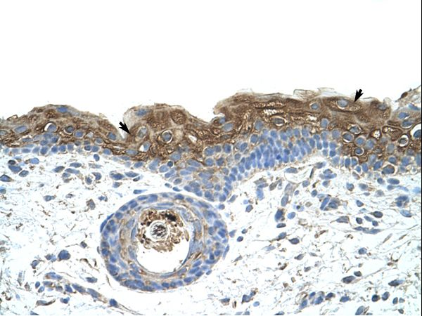 EIF2A antibody LS-C31788 was used in IHC to stain formalin-fixed, paraffin-embedded human skin.  This image was taken for the unconjugated form of this product. Other forms have not been tested.