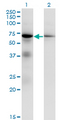 Western blot of EIF2AK2 expression in transfected 293T cell line by EIF2AK2 monoclonal antibody (M01), clone 1B9.