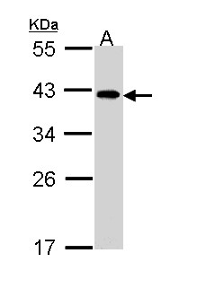 Sample (30 ug of whole cell lysate). A: A431 . 10% SDS PAGE. EIF2B2 antibody diluted at 1:1000.