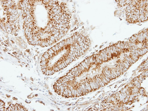 IHC of paraffin-embedded Colon ca using EIF2B beta antibody at 1:250 dilution.