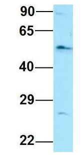 EIF2B3 Antibody - EIF2B3 antibody Western Blot of Human Fetal Lung. Antibody Dilution: 1.0 ug/ml. Antibody dilution: 1 ug/ml.  This image was taken for the unconjugated form of this product. Other forms have not been tested.