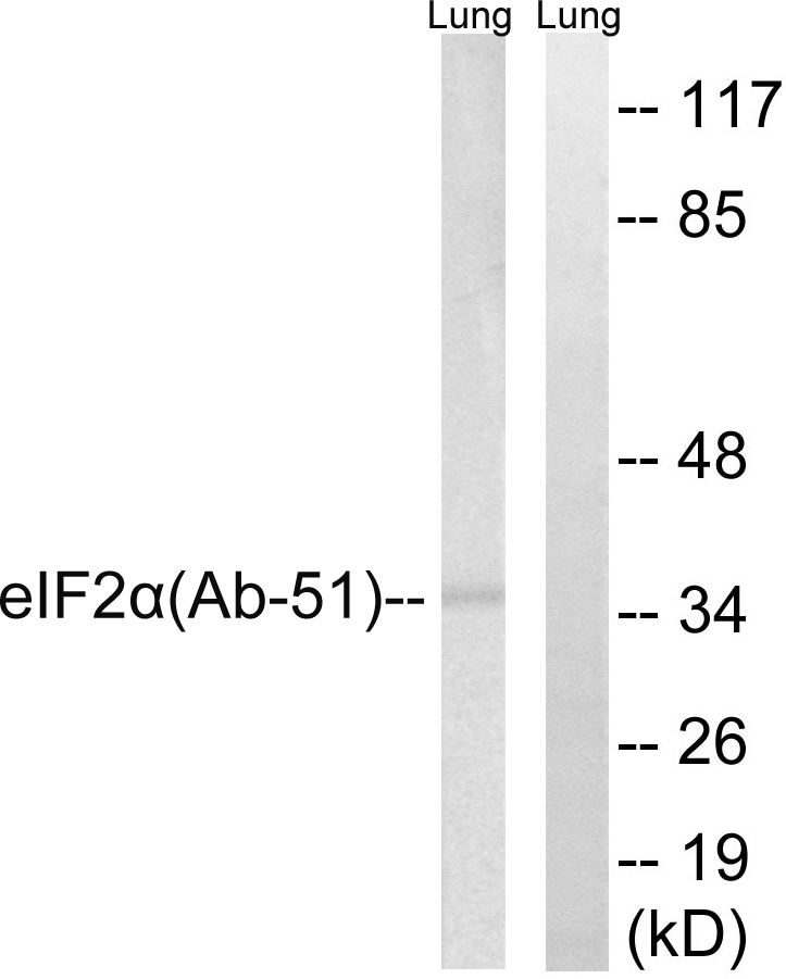 Western blot analysis of lysates from rat lung, using eIF2 alpha Antibody. The lane on the right is blocked with the synthesized peptide.