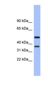 EIF2S1 antibody Western blot of Fetal Small Intestine lysate. This image was taken for the unconjugated form of this product. Other forms have not been tested.