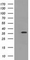 HEK293T cells were transfected with the pCMV6-ENTRY control (Left lane) or pCMV6-ENTRY EIF2S1 (Right lane) cDNA for 48 hrs and lysed. Equivalent amounts of cell lysates (5 ug per lane) were separated by SDS-PAGE and immunoblotted with anti-EIF2S1.