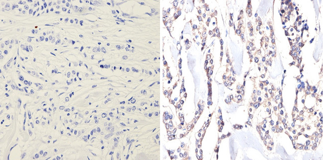 IHC (P) using eIF2 alpha / eIF2S1 Antibody (5A5)