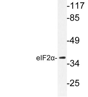 Western blot of eIF2 (I45) pAb in extracts from K562 cells.