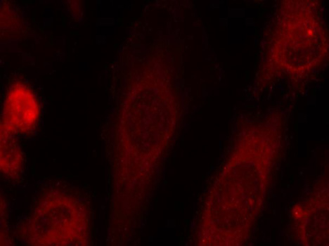 Immunofluorescence staining of methanol-fixed Hela cells.