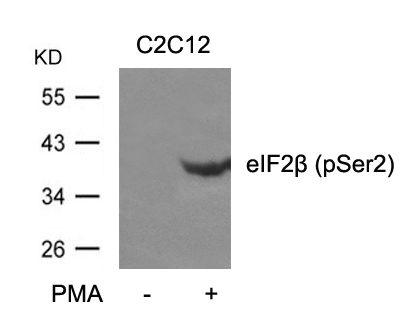 Western blot of extracts from C2C12 cells untreated or treated with PMA using eIF2b (phospho-Ser2) antibody.