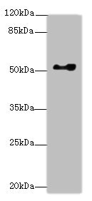 Western blot All Lanes: EIF2S3antibody at 0.83ug/ml+ Hela whole cell lysate Goat polyclonal to rabbit at 1/10000 dilution Predicted band size: 51 kDa Observed band size: 51 kDa