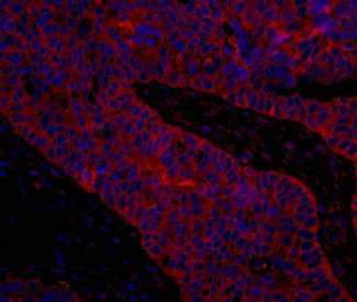 Detection of Human eIF3B/EIF3S9 by Immunohistochemistry. Sample: FFPE section of human ovarian carcinoma. Antibody: Affinity purified rabbit anti-eIF3B/EIF3S9 used at a dilution of 1:100. Detection: Red-fluorescent Goat anti-Rabbit IgG-heavy and light chain cross-adsorbed Antibody DyLight 594 Conjugated (A120-601D4) used at a dilution of 1:100.
