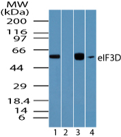 EIF3D Antibody - Western blot of eIF3D in human brain lysate in the 1) absence and 2) presence of immunizing peptide, 3) mouse brain and 4) rat brain lysate using Peptide-affinity Purified Polyclonal Antibody to eIF3D at 0.01 ug/ml, 0.01 ug/ml, 0.005 ug/ml and 0.01 ug/ml, respectively.