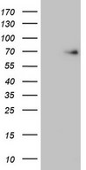 EIF3D Antibody - HEK293T cells were transfected with the pCMV6-ENTRY control. (Left lane) or pCMV6-ENTRY EIF3D. (Right lane) cDNA for 48 hrs and lysed. Equivalent amounts of cell lysates. (5 ug per lane) were separated by SDS-PAGE and immunoblotted with anti-EIF3D. (1:2000)