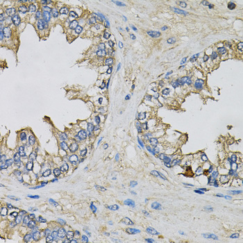 EIF3H / EIF3S3 Antibody - Immunohistochemistry of paraffin-embedded human prostate using EIF3H Antibody at dilution of 1:100 (40x lens).