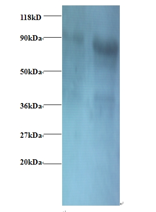 Western blot of Eukaryotic translation initiation factor 3, subunit 2 beta antibody at 2 ug/ml. Lane 1: EC109whole cell lysate. Lane 2: 293T whole cell lysate. Secondary: Goat polyclonal to Rabbit IgG at 1:15000 dilution. Predicted band size: 36 kDa. Observed band size: 80 kDa.  This image was taken for the unconjugated form of this product. Other forms have not been tested.
