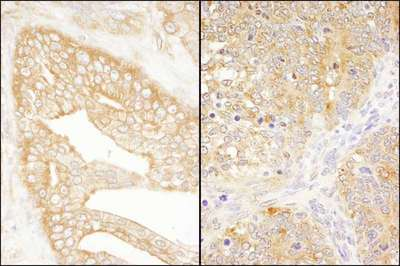 Detection of Human and Mouse eIF3J/EIF3S1 by Immunohistochemistry. Sample: FFPE section of human prostate carcinoma (left) and mouse teratoma (right). Antibody: Affinity purified rabbit anti-eIF3J/EIF3S1 used at a dilution of 1:1000 (1 Detection: DAB.