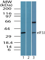 Western blot of eIF3J in 293 cell lysate in the 1) absence and 2) presence of immunizing peptide and 3) 3T3 cell lysate using Peptide-affinity Purified Polyclonal Antibody to eIF3J at 1.0 ug/ml, 1.0 ug/ml and 0.5 ug/ml, respectively. Goat anti-rabbit Ig HRP secondary antibody, and PicoTect ECL substrate solution, were used for this test.