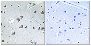 Immunohistochemistry analysis of paraffin-embedded human brain tissue, using EIF3F Antibody. The picture on the right is blocked with the synthesized peptide.