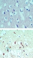 IHC ofeIF4A2 in paraffin-embedded formalin-fixed human brain tissue using an isotype control (top) and Polyclonal Antibody to eIF4A2 (bottom) at 5 ug/ml.