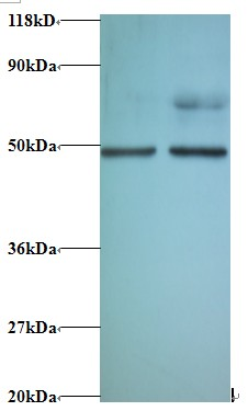 Western blot of Eukaryotic initiation factor 4A-II antibody at 2 ug/ml. Lane 1: EC109 whole cell lysate. Lane 2: 293T whole cell lysate. Secondary: Goat polyclonal to Rabbit IgG at 1:15000 dilution. Predicted band size: 44.8 kDa. Observed band size: 44.8 kDa Additional bands at: 70 kDa. We are unsure as to the identity of these extra band.  This image was taken for the unconjugated form of this product. Other forms have not been tested.