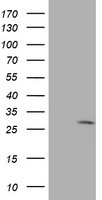 EIF4E Antibody - HEK293T cells were transfected with the pCMV6-ENTRY control (Left lane) or pCMV6-ENTRY EIF4E (Right lane) cDNA for 48 hrs and lysed. Equivalent amounts of cell lysates (5 ug per lane) were separated by SDS-PAGE and immunoblotted with anti-EIF4E.