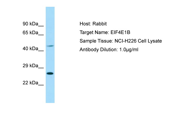 EIF4E1B Antibody -  This image was taken for the unconjugated form of this product. Other forms have not been tested.