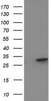 EIF4E2 / IF4e Antibody - HEK293T cells were transfected with the pCMV6-ENTRY control (Left lane) or pCMV6-ENTRY EIF4E2 (Right lane) cDNA for 48 hrs and lysed. Equivalent amounts of cell lysates (5 ug per lane) were separated by SDS-PAGE and immunoblotted with anti-EIF4E2.