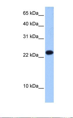 Fetal liver cell lysate. Antibody concentration: 0.5 ug/ml. Gel concentration: 15%.  This image was taken for the unconjugated form of this product. Other forms have not been tested.