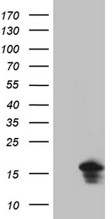 EIF4E3 Antibody - HEK293T cells were transfected with the pCMV6-ENTRY control. (Left lane) or pCMV6-ENTRY EIF4E3. (Right lane) cDNA for 48 hrs and lysed. Equivalent amounts of cell lysates. (5 ug per lane) were separated by SDS-PAGE and immunoblotted with anti-EIF4E3. (1:2000)