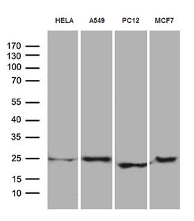 EIF4E3 Antibody - Western blot analysis of extracts. (35ug) from 4 different cell lines by using anti-EIF4E3 monoclonal antibody. (1:500)