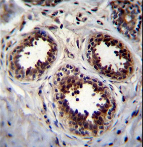 EIF4EBP1 / 4EBP1 Antibody - EIF4EBP1 Antibody immunohistochemistry of formalin-fixed and paraffin-embedded human breast tissue followed by peroxidase-conjugated secondary antibody and DAB staining.