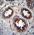 EIF4EBP1 Antibody immunohistochemistry of formalin-fixed and paraffin-embedded human breast tissue followed by peroxidase-conjugated secondary antibody and DAB staining.
