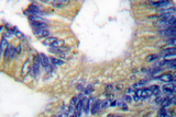 IHC of 4E-BP1 (N63) pAb in paraffin-embedded human colon carcinoma tissue.