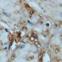 EIF4EBP1 / 4EBP1 Antibody - Immunohistochemical analysis of 4EBP1 staining in human prostate cancer formalin fixed paraffin embedded tissue section. The section was pre-treated using heat mediated antigen retrieval with sodium citrate buffer (pH 6.0). The section was then incubated with the antibody at room temperature and detected using an HRP polymer system. DAB was used as the chromogen. The section was then counterstained with hematoxylin and mounted with DPX.