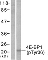 Western blot analysis of lysates from MDA-MB-435 cells treated with EGF 200ng/ml 30', using 4E-BP1 (Phospho-Thr36) Antibody. The lane on the left is blocked with the phospho peptide.
