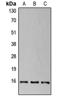 EIF4EBP1 / 4EBP1 Antibody - Western blot analysis of 4EBP1 (pT37) expression in HEK293T insulin-treated (A); NIH3T3 insulin-treated (B); PC12 insulin-treated (C) whole cell lysates.