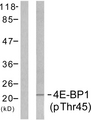 Western blot analysis of lysates from MDA-MB-435 cells treated with EGF 200ng/ml 5', using 4E-BP1 (Phospho-Thr45) Antibody. The lane on the right is blocked with the phospho peptide.