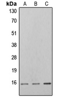 EIF4EBP1 / 4EBP1 Antibody - Western blot analysis of 4EBP1 (pT46) expression in K562 PMA-treated (A); NIH3T3 PMA-treated (B); PC12 PMA-treated (C) whole cell lysates.