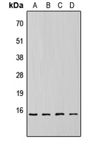 EIF4EBP1 / 4EBP1 Antibody - Western blot analysis of 4EBP1 (pT69) expression in HEK293T (A); NS-1 (B); H9C2 (C); rat liver (D) whole cell lysates.