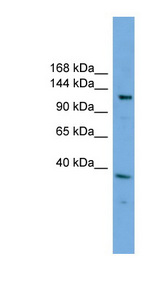 EIF4ENIF1 antibody LS-C112035 Western blot of Jurkat lysate.  This image was taken for the unconjugated form of this product. Other forms have not been tested.